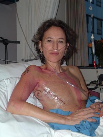 net na de operatie